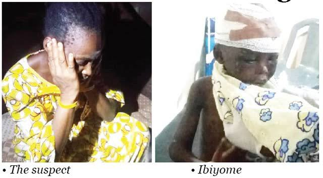 Aunt From Hell! 43-Yr-Old Woman Arrested For Locking Up Nephew, Inflicting Matchet Cut on Head, Back